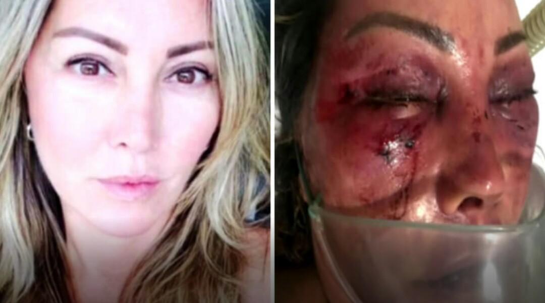 Mulher é espancada durante 4 horas em encontro com homem que conheceu na internet